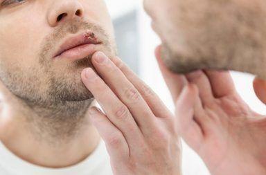 الهربس البسيط الأسباب والأعراض والتشخيص والعلاج فيروس الحلأ البسيط تقرحان حول منطقة العانة أو الفم تقرحات البرد وبثور الحمى