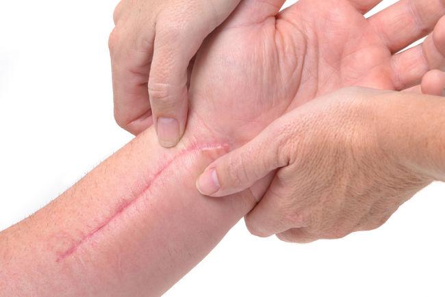 هل عثر العلماء على طريقة لعلاج الجروح دون ترك اية ندوب ؟