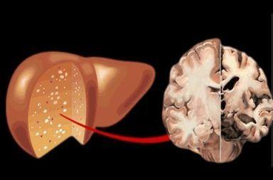 الاعتلال الدماغي الكبدي الأسباب والاعراض والتشخيص والعلاج إزالة السموم من الدم التهاب الكبد الفيروسي تلف في الدماغ ضعف في وظائف الدماغ