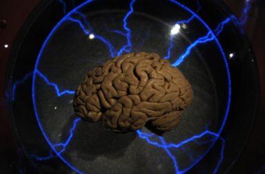 مرض ألزهايمر: هل يستطيع الحمض الأميني أن يساعد على استرداد الذكريات - مشكلات الذاكرة الناتجة عن مرض ألزهايمر - فقدان الذاكرة المرتبط بالألزهايمر