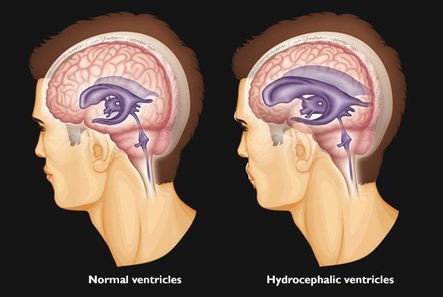 استسقاء الدماغ أو موه الرأس: الأسباب والأعراض والتشخيص والعلاج