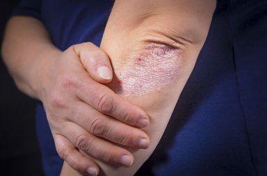 الحزاز البسيط المزمن: الأسباب والأعراض والتشخيص والعلاج منطقة موضعية من الأكزيما أو التهاب الجلد المتحزز المزمن الالتهاب الجلدي العصبي
