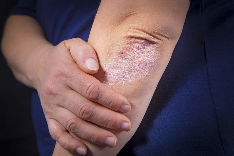 الحزاز البسيط المزمن: الأسباب والأعراض والتشخيص والعلاج