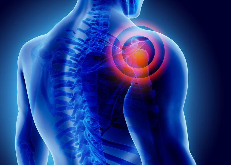 الألم المزمن: الأسباب والأعراض والتشخيص والعلاج