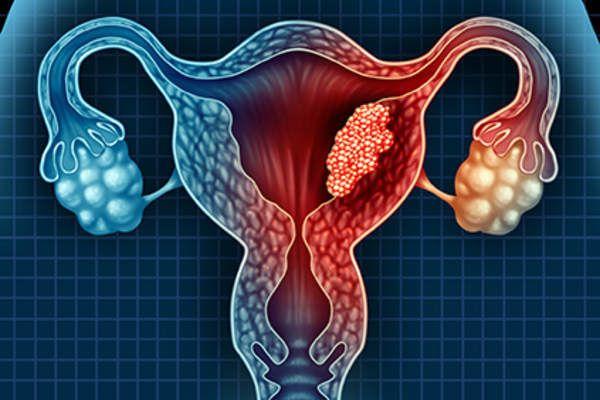 سرطان بطانة الرحم الأسباب والأعراض والتشخيص والعلاج أنا أصدق العلم