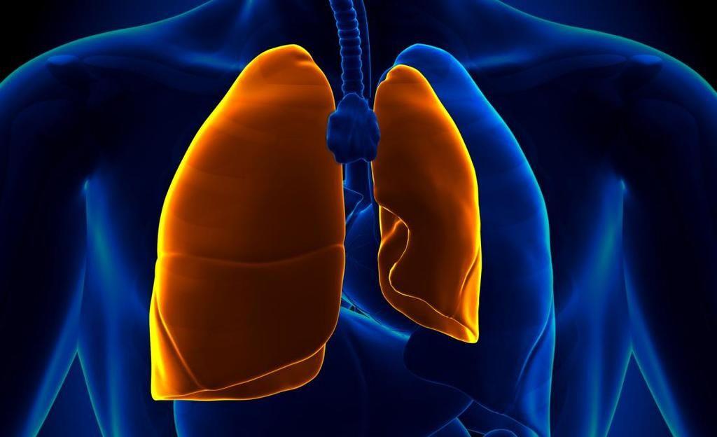 استرواح الصدر: الأسباب والأعراض والتشخيص والعلاج