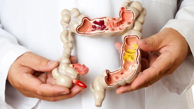 متلازمة غاردنر: الأسباب والأعراض والتشخيص والعلاج
