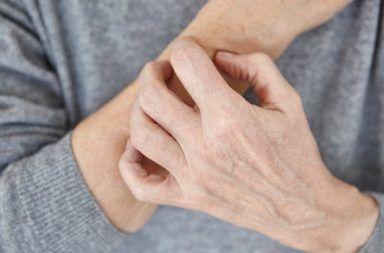 10 من مسببات الحساسية غريبة ومدهشة مواد بم تكن تعرف مسبقًا أنها يمكن أن تسبب الإصابة بالحساسية الحساسية تجاه العفن وغبار الطلع والحيوانات الأليفة