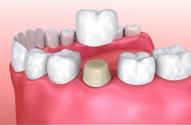 ألم تاج الأسنان: الأسباب والعلاج - تيجان الأسنان تغطي الأسنان المتضررة وتحميها من المؤثرات الخارجية - الحساسية أو الضغط أو الألم المستمر في موضع التاج