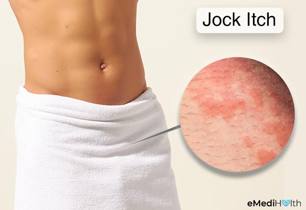 حكة اللعب (حكة جوك): الأسباب والأعراض والعلاج - عدوى فطرية تصيب الجلد تسبب الحكة والاحمرار - ما هي أعراض حكّة جوك - أسباب حكّة الّلعب