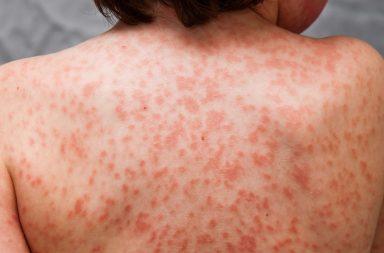 ما هو داء كاواساكي - متلازمة العقدة اللمفاوية المخاطية الجلدية - مرض يسبب التهابًا في الشرايين والأوردة والشعيرات - أمراض القلب الخطيرة