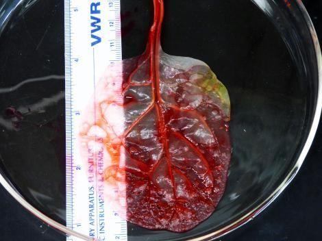 انجاز طبي هائل تحويل اوراق سبانخ لنسيج قلبي نابض
