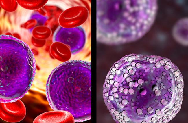 ما الفرق بين اللوكيميا (سرطان الدم) واللمفومة (الورم اللمفي)؟