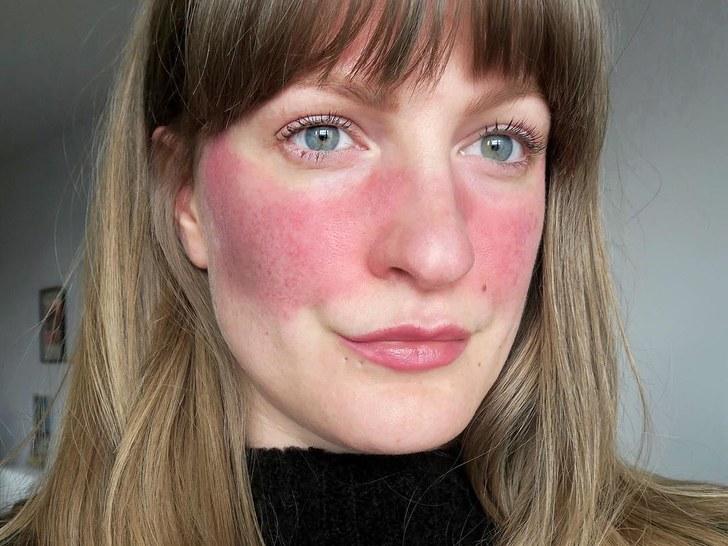 العد الوردي: الأسباب والأعراض والتشخيص والعلاج