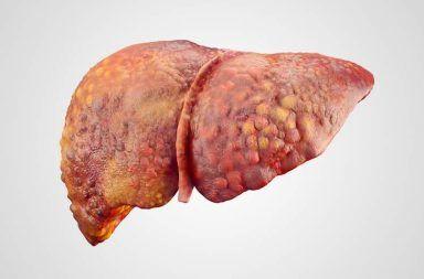 أعراض التهاب الكبد علاج تليف الكبد الأسباب والأعراض والتشخيص والعلاج تدفق الدم عبر البطن القنوات الصفراوية الإكثار من شرب الكحول