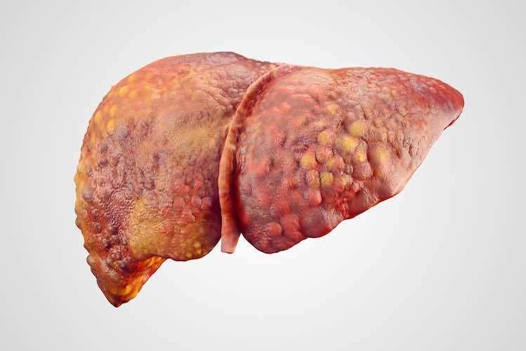 تليف الكبد: الأسباب والأعراض والتشخيص والعلاج