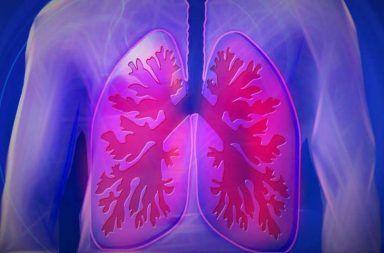 داء النوسجات داء الكهف الأسباب والاعراض والتشخيص والعلاج استنشاق الأبواغ الفطرية لفطر النوسجة المغمدة فضلات الخفافيش الفطريات