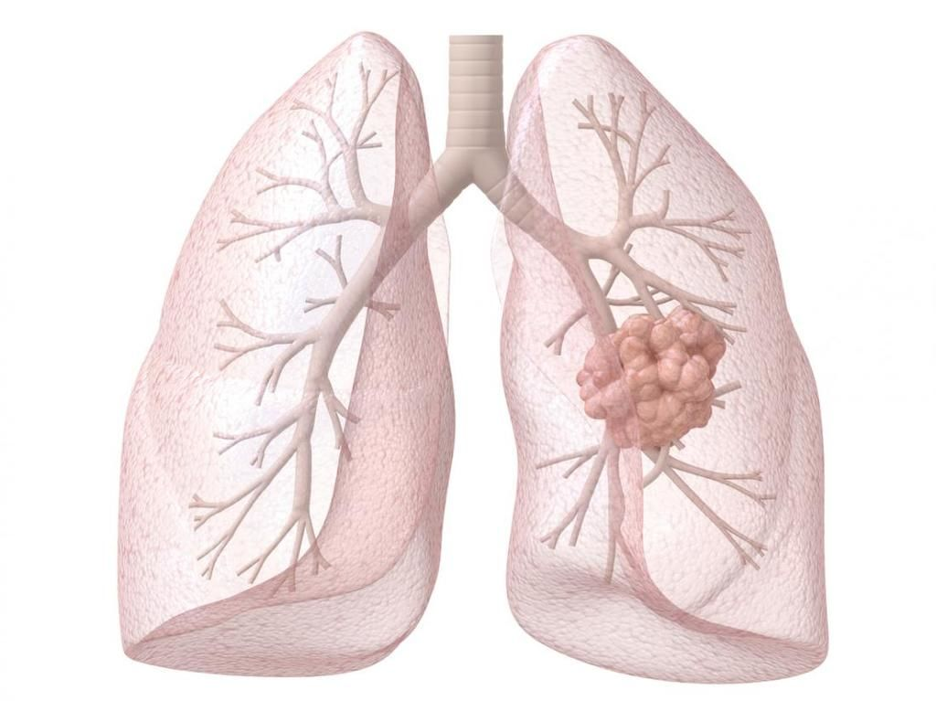 ما علاقة فيتامين ب بزيادة خطر الإصابة بسرطان الرئة؟