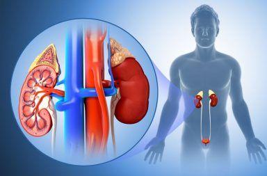 التهاب الحويضة والكلية: الأسباب والأعراض والتشخيص والعلاج إصابة كلوية شديدة ومفاجئة، يُسبب تورم الكليتين انسدادات في المجاري البولية
