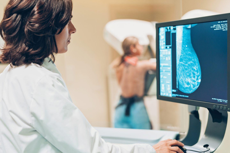 الذكاء الاصطناعي يتفوق على البشر في تشخيص سرطان الثدي