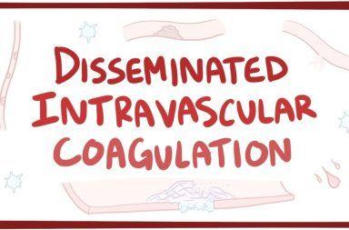التخثر داخل الأوعية المنتشر: الأسباب والأعراض والتشخيص والعلاج التصنيع الزائد وغير الطبيعي للثرومبين و الفيبرين في الدورة الدموية الأوعية الدموية