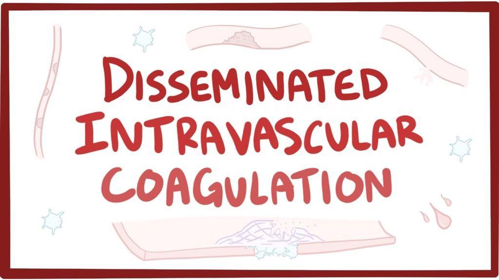التخثر داخل الأوعية المنتشر: الأسباب والأعراض والتشخيص والعلاج