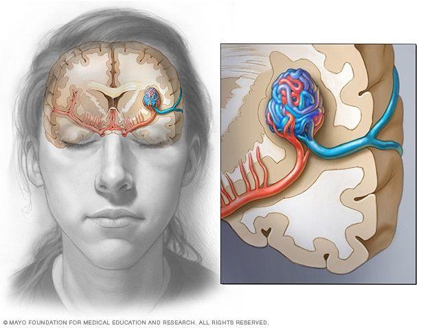 التشوه الشرياني الوريدي: الأسباب والأعراض والتشخيص والعلاج