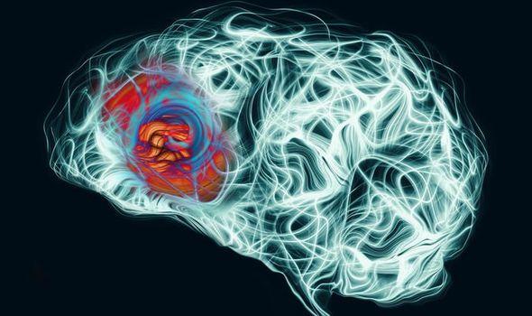 مسح دماغي يكشف عن نوع جديد من الفصام