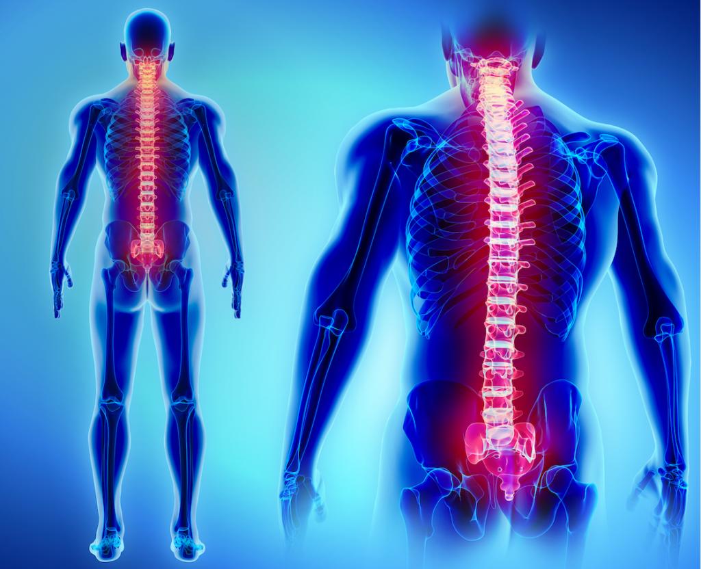 التهاب النخاع المعترض: الأسباب والأعراض والتشخيص والعلاج