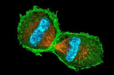 الخلية الأم هي ما يقرر انقسام الخلايا أو عدمه - متى تقرر الخلايا أن تنقسم - الانقسام الخيطي - الانقسام المنصف أو الانقسام الاختزالي أو الانتصاف