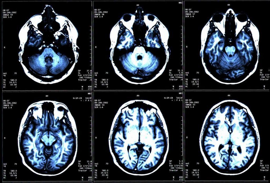 أبحاث جديدة تقدم الأمل لمرضى التصلب المتعدد، فهل نصل للعلاج؟
