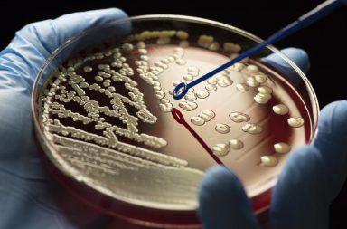 تضاعف نسبة الجراثيم المقاومة للمضادات الحيوية خلال السنوات العشرين الماضية - أسباب الزيادة في أعداد البكتيريا المقاومة للصادات الحيوية