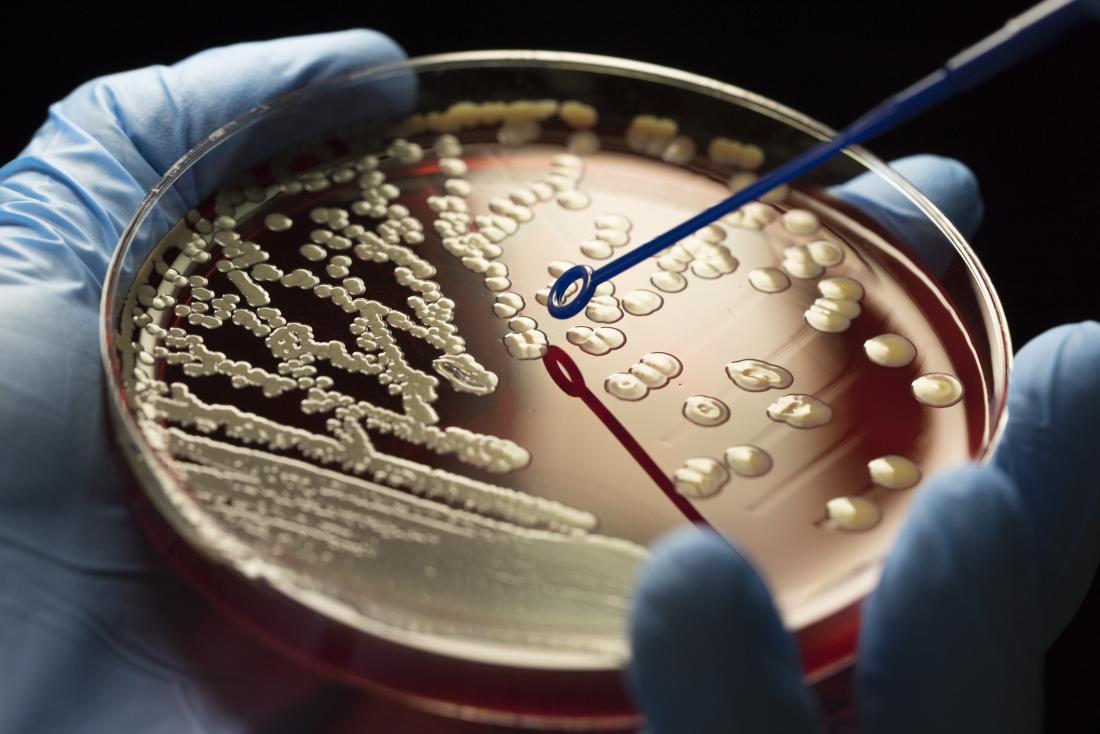 تضاعف نسبة الجراثيم المقاومة للمضادات الحيوية خلال السنوات العشرين الماضية