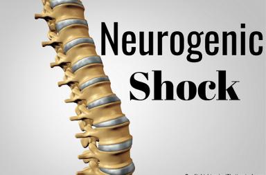 الصدمة العصبية: الأسباب والأعراض والتشخيص والعلاج - عدم انتظام الدورة الدموية في الجسم، وذلك بسبب رض أو إصابة العمود الفقري