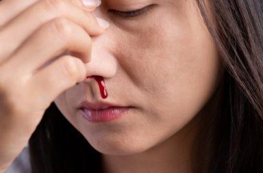 ما أسباب الرعاف (نزيف الأنف) وعلاجه - نزيف الدم من الأنف - الرعاف الخلفي وهو الذي يصيب مؤخرة الأنف أو أعمق جزء من الأنف - تتمزق الأوعية الدموية