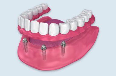 كل ما تحتاج إلى معرفته عن طاقم الأسنان المثبت على غرسات - فقدان الأسنان في الفك - أطقم الأسنان المثبتة على غرسات - تقليل الاحتكاك مع اللثة