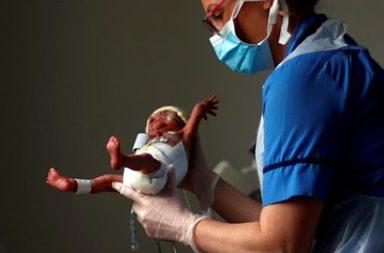 ما حقيقة انخفاض معدل الولادات الباكرة خلال جائحة كوفيد-19 - وفيات الفيروس التاجي والأمراض حول العالم - التوتر والخوف والقلق في أثناء الحمل