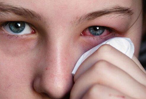 ألم العين: الأسباب والعلاج