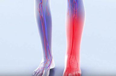 متلازمة ما بعد التجلط أو الخثار: الأسباب والأعراض والتشخيص والعلاج Post-thrombotic syndrome الخثار الوريدي العميق DVT جلطة دموية