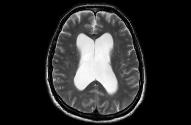 استسقاء الرأس سوي الضغط (NPH): الأسباب والأعراض والتشخيص والعلاج - حالة ناتجة عن تراكم غير طبيعي للسائل الدماغي الشوكي في تجاويف الدماغ