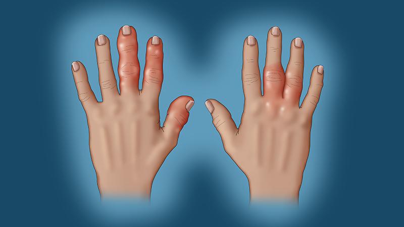 التهاب المفاصل الصدفي