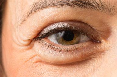 الحساسية أو انسداد القنوات الدمعية - التورم تحت العين: الأسباب والعلاج - الانتفاخ تحت العينين - السبب الكامن وراء التورم أسفل العينين