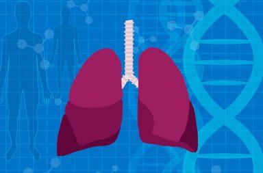 فرط ضغط الدم الرئوي (PH): الأسباب والأعراض والتشخيص والعلاج - ارتفاع ضغط الدم في الرئتتين بشكل غير طبيعي بسبب ضيق الأوعية