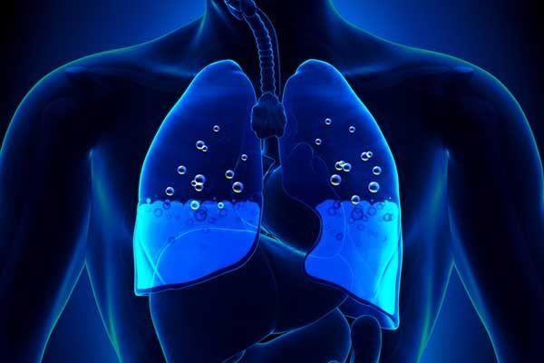 وذمة الرئة: الأسباب والأعراض والتشخيص والعلاج