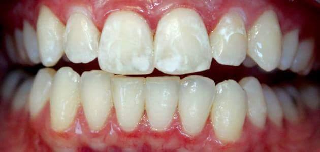 البقع البيضاء على الاسنان : ما اسبابها ؟ و كيف تعالج ؟
