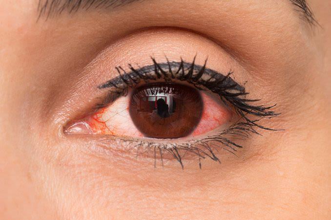 ما أسباب احمرار العين ؟ وما علاجه؟