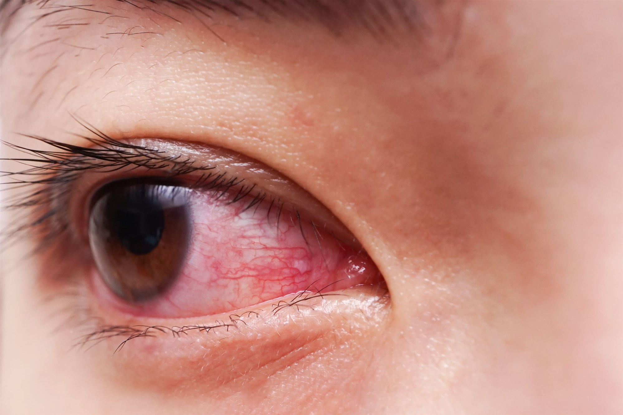 ما أسباب احمرار العين ؟ وما علاجه؟ - التهاب الأوعية الدموية داخل العين أو تهيجها - الهواء الجاف - الغبار - الحساسية - العدوى البكتيرية أو الفيروسية