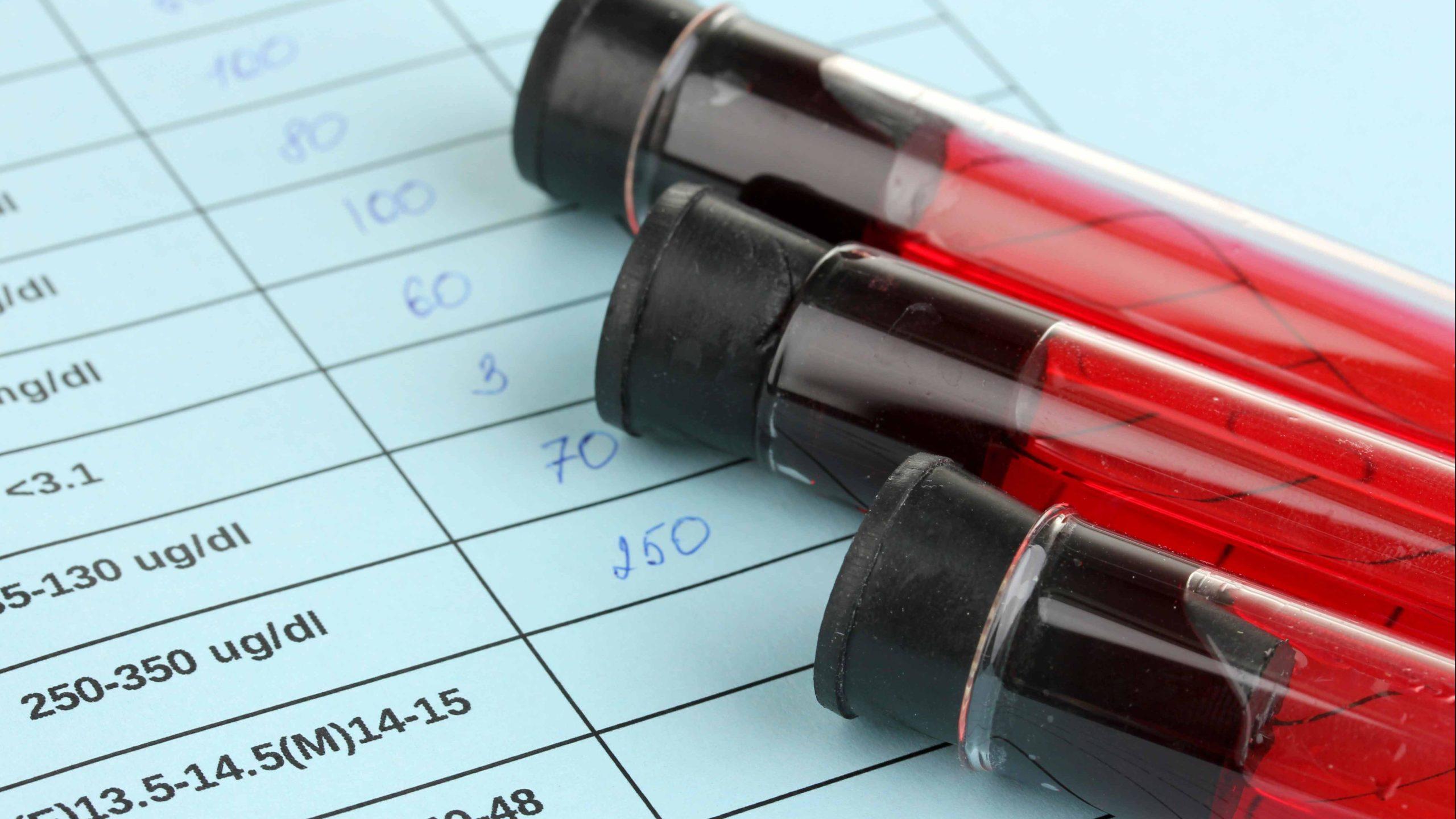 قد تكون مميعات الدم خيارًا أفضل من الوارفارين لمرضى الرجفان الأذيني - أدوية لعلاج مرضى الرجفان الأذيني - مضادات التخثر الفموية