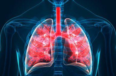 الانصمام الرئوي: الأسباب والأعراض والتشخيص والعلاج جلطة دموية تحدث في الرئتين تلف جزئي في الرئة بسبب إعاقة تدفق الدم الجلطات الدموية الكبيرة