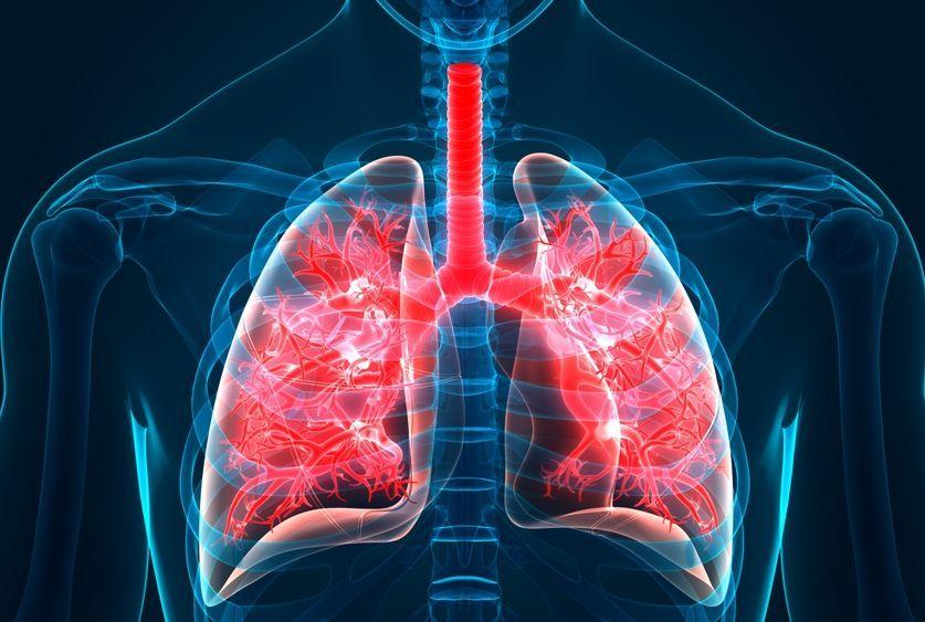 الانصمام الرئوي: الأسباب والأعراض والتشخيص والعلاج